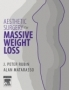 Aesthetic Surgery After Massive Weight Loss ,By J. Peter Rubin,