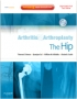 Arthritis and Arthroplasty: The Hip - Expert Consult - Online, P