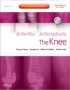 Arthritis and Arthroplasty: The Knee - Expert Consult - Online,
