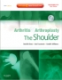 Arthritis and Arthroplasty: The Shoulder - Expert Consult - Onli