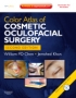 Color Atlas of Cosmetic Oculofacial Surgery with DVD, 2nd Editio